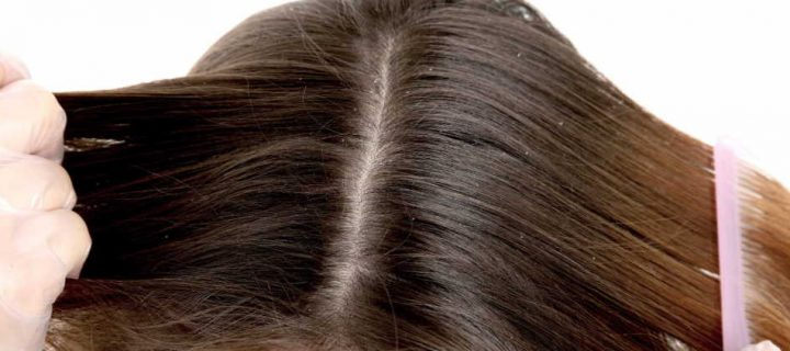 Different Cause Of Dry Scalp You Should Know About