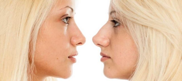 Plastic Surgery- What Is The Best Age To Have It?